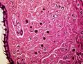 Trichinella Spiralis x.s. & l.s. 40x.png