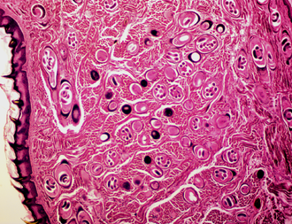 Trichinella spiralis - Animal tissue infected with the parasite that causes the disease trichinosis. Most parasites are shown in cross section but some randomly appear in long section.