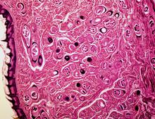 trichinella spiralis encysted