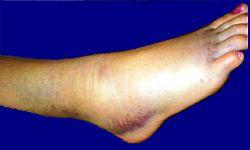 Повреждение голеностопного сустава реферат воспаление суставов кисти лечение