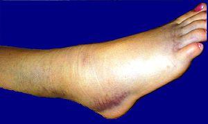 Ankle strain 3rd degree Ελληνικά: Διάστρεμμα Π...