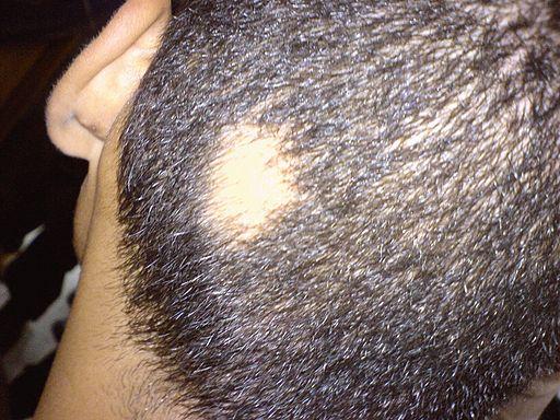 Allopecia areata