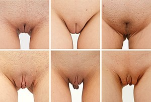 "Labia minora - The size of labia varies between women: while the labia minora remain hidden between the labia majora in some women (top row), they ""stick out"" in other women (bottom row), with the protuding labia clearly visible in standing position"