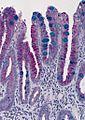 Barrett's mucosa, PAS-Alcian blue stain.jpg