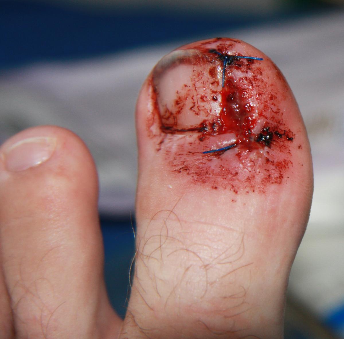 Wie gribok der Nägel komplex zu heilen