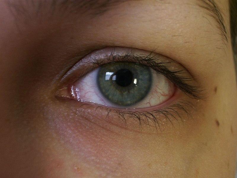 File:Bloodshot eye.jpg