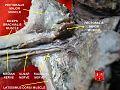Brachial plexus 4.jpg