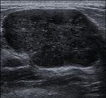 Breast US Fibroadenoma 0531094012531 Nevit.jpg