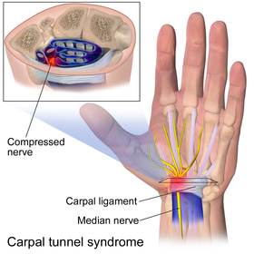 Carpal Tunnel Surgery Wikipedia