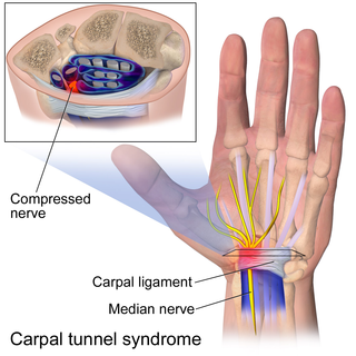 Carpal tunnel surgery surgery to relieve carpal tunnel syndrome