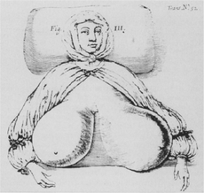 In 1670, the physician Durston drew this illustration of first recorded case of non-gravid gigantomastia; the woman died of the condition.