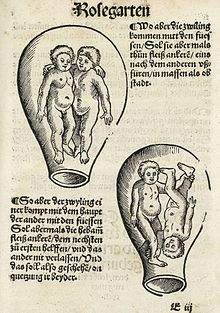 Presentation (obstetrics) - Wikipedia