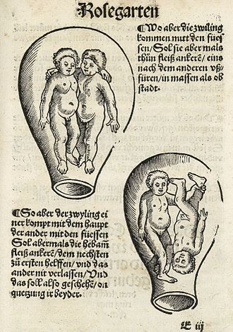 Eucharius Rösslin - Image: Eucharius Rösslin Der schwangeren Frauen und Hebammen Rosengarten