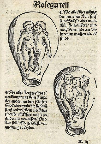 Fichier:Eucharius Rösslin - Der schwangeren Frauen und Hebammen Rosengarten.jpg