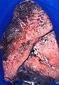 Mucinous adenocarcinoma, invasive, diffuse (3981665918).jpg