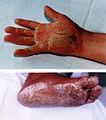 Naxos Disease Hand Feet 01.jpg