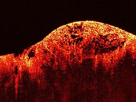 Optical Coherence Tomography Equipments Market in 360marketupdates.com