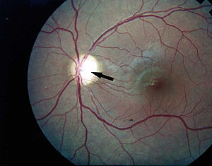 Photographic image of the patient left eye showing optic atrophy without diabetic retinopathy Wolfram syndrome.jpg