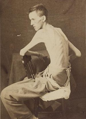 65th Indiana Infantry Regiment - Private Jackson O. Broshears of Company D, 65th Indiana Infantry, under medical treatment in 1864, eight weeks after his release from a Confederate prison.