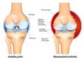Rheumatoid-Arthritis.png