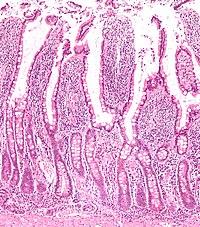 Micrograph Of The Small Intestine Mucosa Showing Intestinal Villi And Crypts Lieberkühn