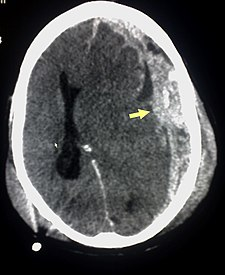 Trauma subdural arrow.jpg