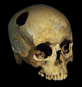 Trepanning - Image: Trepanated skull of a woman P4140363 black