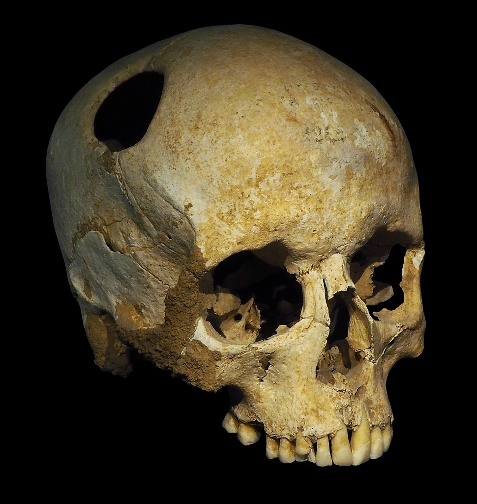 Trepanated skull of a woman-P4140363-black