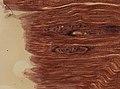 Trichinella spiralis (YPM IZ 095194).jpeg
