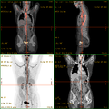 Vasculitis FDG PET-CT.png