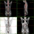 Vasculitis FDG PET-CT.png