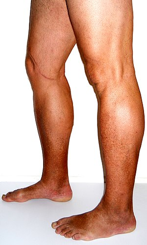 Venous Insufficiency - Pictures, Symptoms, Causes ...