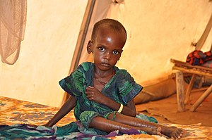 A malnourished child in an MSF treatment tent ...