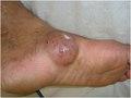 Actinomycetoma before treatment.tif