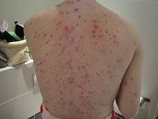 Adult back with chickenpox.jpg