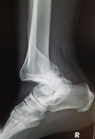 Ankledislocation.JPG