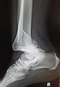 Lussazione traumatica dell articolazione tibia-tarsica di una caviglia con  frattura distale del perone. La freccia aperta indica la tibia mentre  quella ... d256e538c47b