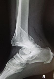 Joint dislocation medical injury