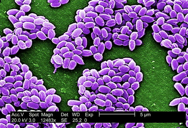File:Anthrax spores (5940425745).jpg