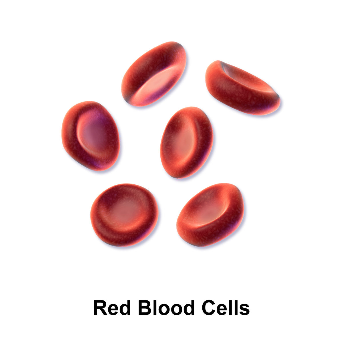 A description of anemia as a disease of the blood characterized by a deficiency in red blood cells