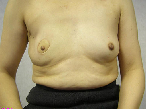 Breast reconstruction 18