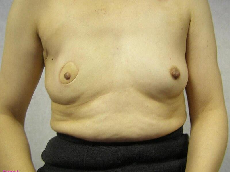 Die Spitzenwäsche für die kleine Brust