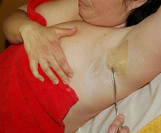 Waxing - Waxing a woman's armpits.