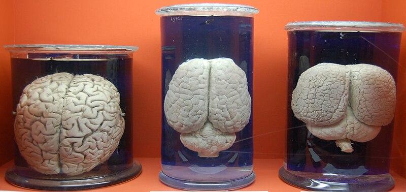 File:Comparaison cerveau.jpg