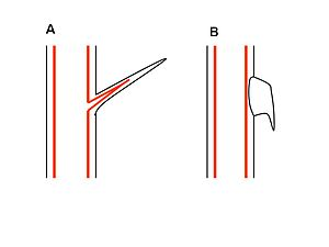 Thorns, spines, and prickles - (A) Thorn or spine (B) Prickle