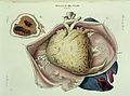 Diseases of the heart Wellcome L0033474.jpg
