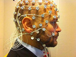 Long-term video-EEG monitoring - EEG cap setup.