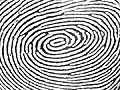 Elongated whorl without the deltas in a right thumbprint (2).jpg