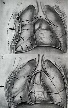 Flail Chest Wikipedia
