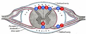 Anterior spinal artery - 1: Posterior spinal vein 2: Anterior spinal vein 3: Posterolateral spinal vein 4: Radicular (or segmental medullary) vein 5: Posterior spinal arteries 6: Anterior spinal artery 7: Radicular (or segmental medullary) artery